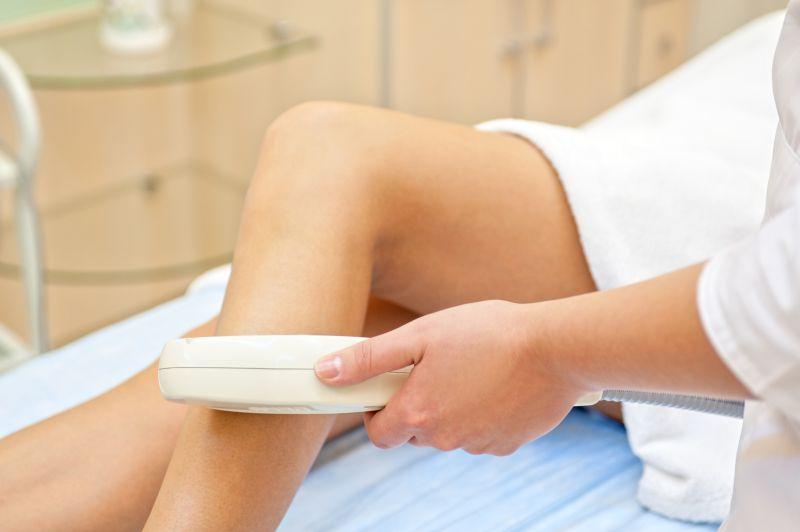 Sklerosierung und Miniphlebektomie, wirksame und schmerzlose Eingriffe